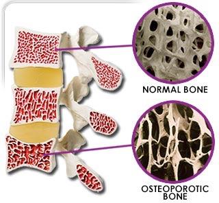 Osteoporose en voeding
