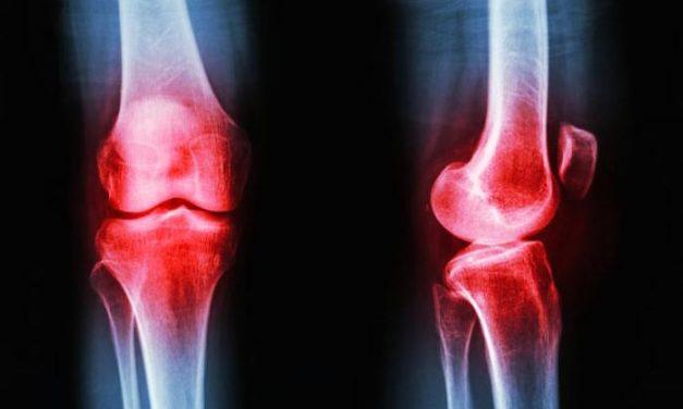 Wat is artrose en kun je artrose voorkomen?