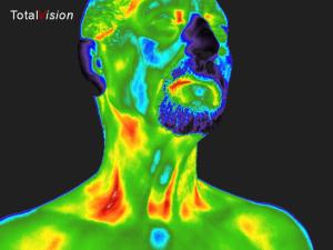 hoofd_nek infrarood