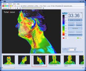 software infrarooscreening
